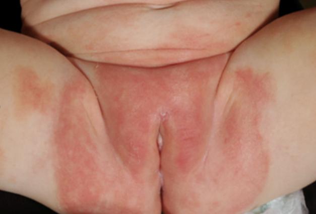 Illustration d'une dermite irritative commune